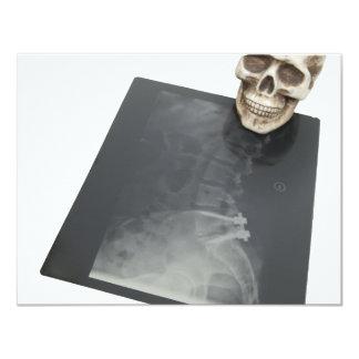 BonesXray061209 11 Cm X 14 Cm Invitation Card