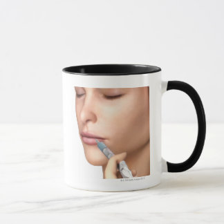 Botox Injections Mug