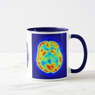 Brain image mug