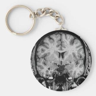 Brain MRI, coronal slice Basic Round Button Key Ring