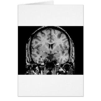 Brain MRI, coronal slice Card