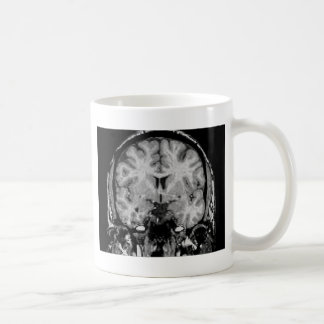 Brain MRI, coronal slice Coffee Mug