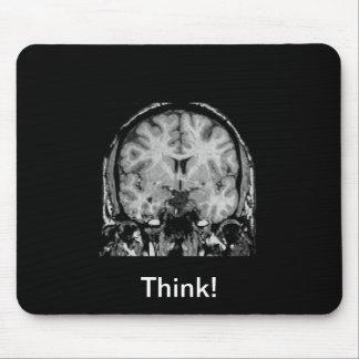 Brain MRI, coronal slice Mouse Mat