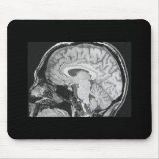 Brain MRI Mouse Mat