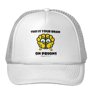 Brain on Prions Cap