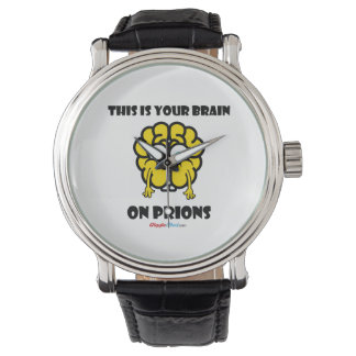 Brain on Prions Wristwatch