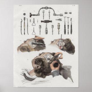 Brain Surgery Instruments Vintage Anatomy Print
