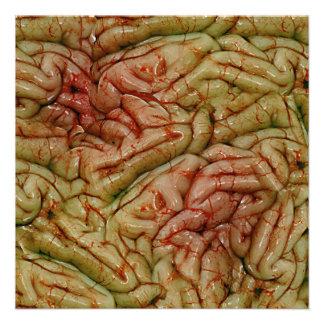 Brains BrainZZ BRAINZZZ Announcement