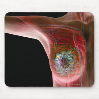 Breast cancer 2 mouse mat