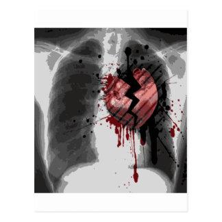 Broken Hearted X-ray Postcard