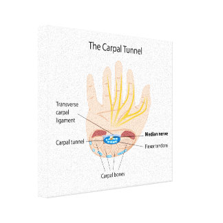 Carpal tunnel stretched canvas print