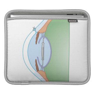 Cataract Surgery iPad Sleeve