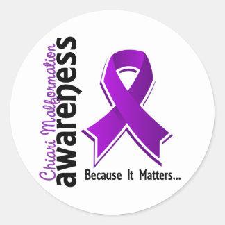 Chiari Malformation Awareness 5 Round Stickers