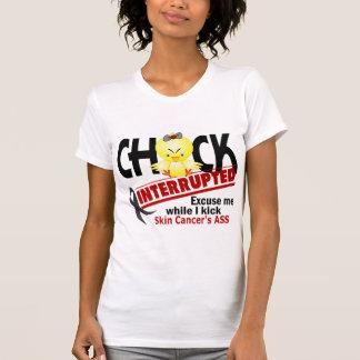 Chick Interrupted 2 Skin Cancer Tee Shirt