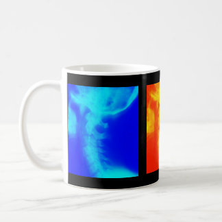 Chiropractic Coffee Cup, Travel Mugs, and Steins