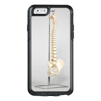 Chiropractic skeleton OtterBox iPhone 6/6s case