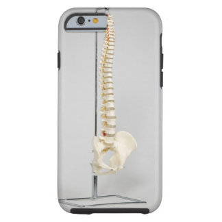 Chiropractic skeleton tough iPhone 6 case