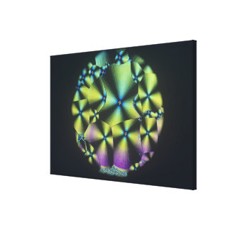 Cholesterol Crystals Canvas Print