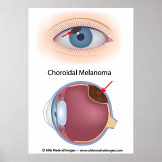 Choroidal melanoma, labeled diagram. poster
