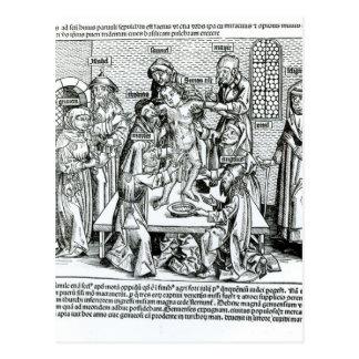 Circumcision, from 'Liber Chronicarum' Postcard