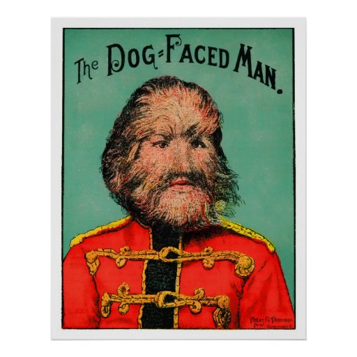 Circus Freak! The Dog-Faced Man (or Boy) Posters