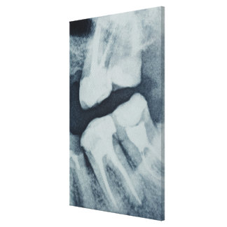 Close-up of a dental X-Ray Canvas Print