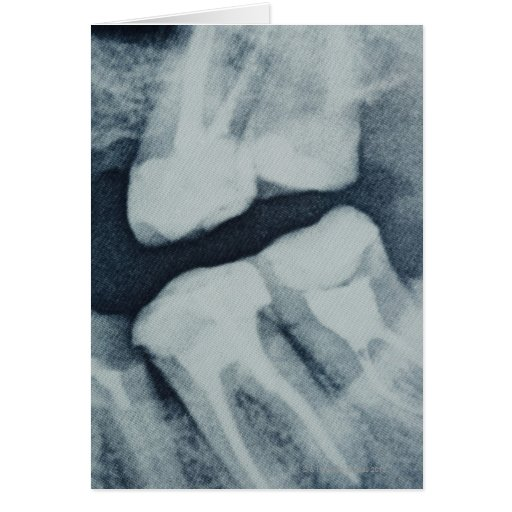 Close-up of a dental X-Ray Cards
