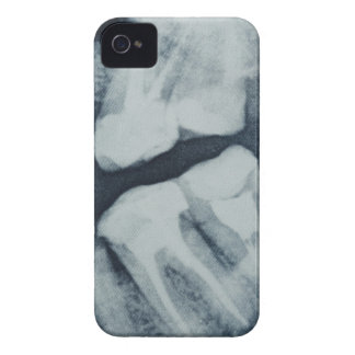 Close-up of a dental X-Ray iPhone 4 Covers