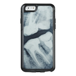 Close-up of a dental X-Ray OtterBox iPhone 6/6s Case