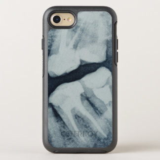 Close-up of a dental X-Ray OtterBox Symmetry iPhone 7 Case
