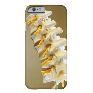 Close-up of a medical model of vertebrae of the barely there iPhone 6 case