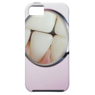 Close-up of teeth reflected in dental mirror iPhone 5 case