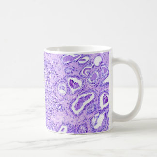 Coffee Mug-Prostate Cancer Coffee Mug