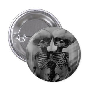 Conjoined Twins Skeleton button pin