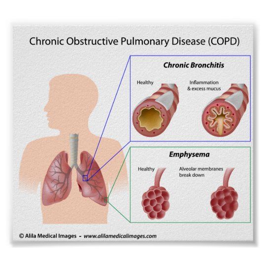 COPD Lung diseases diagram Poster