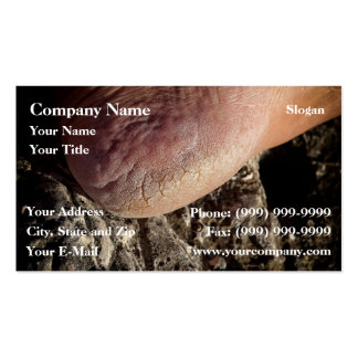 Cracked heel business card templates