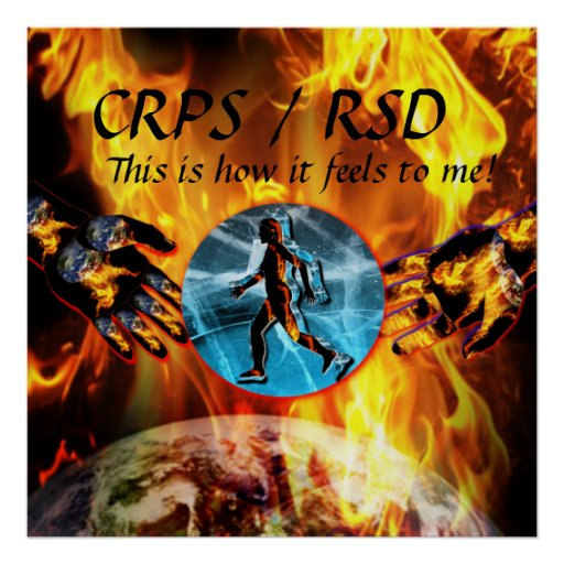 CRPS/RSD This is how it feels to me!  Blzn Poster