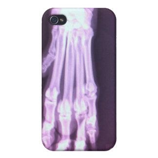 Dalmatian Xray iPhone 4/4S Covers