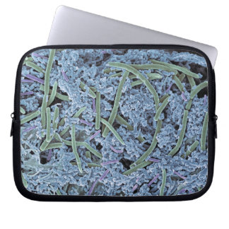 Dental plaque, coloured scanning electron laptop sleeve