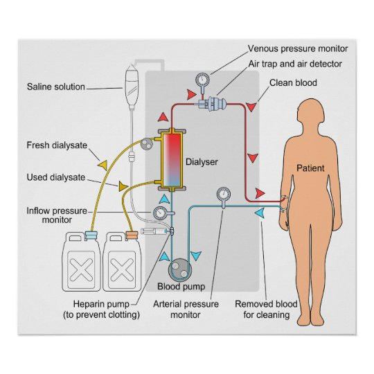 Diagram of a haemodialysis medical treatment poster zazzle diagram of a haemodialysis medical treatment poster ccuart Choice Image