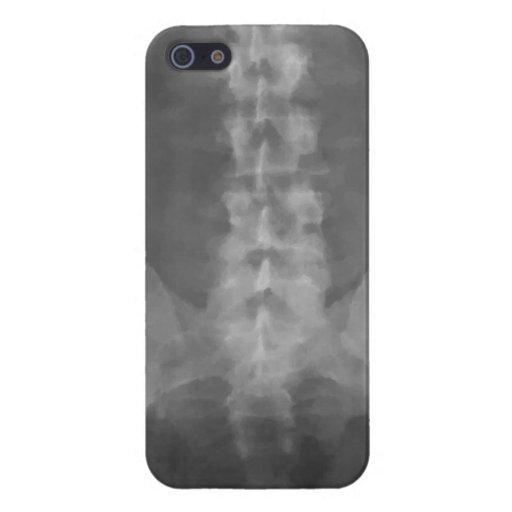 Digital X-Ray Art Savvy iPhone 5 Case