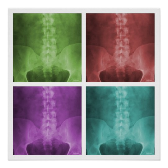 Digital X-Ray Pop Art Square Poster