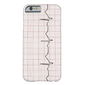 EKG heartbeat on graph paper, PhD (doctor) pulse Barely There iPhone 6 Case
