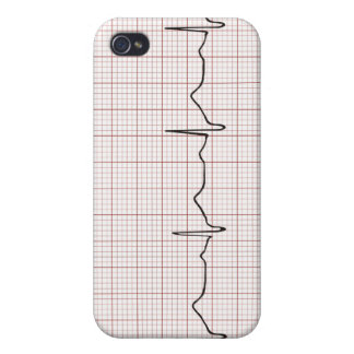 EKG heartbeat on graph paper, PhD (doctor) pulse Case For The iPhone 4