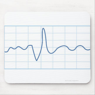 Electromyography Mouse Pad