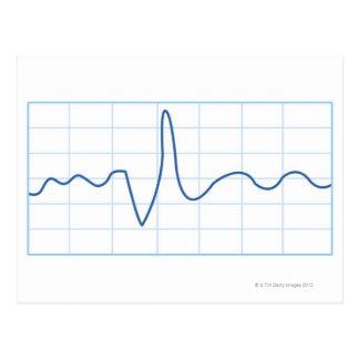 Electromyography Postcard