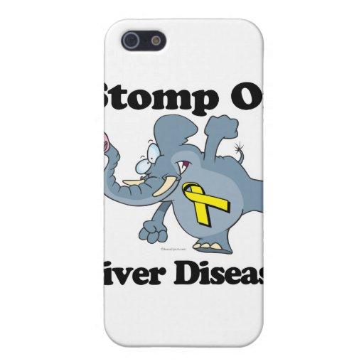 Elephant Stomp On Liver Disease iPhone 5 Case