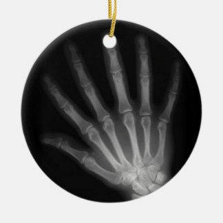 Extra Digit X-ray Left Hand Christmas Ornament