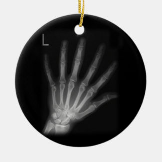 Extra Digit X-ray Left Hand Round Ceramic Decoration