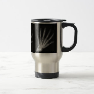 Extra Digit X-ray Left Hand Coffee Mugs